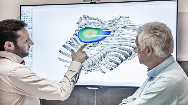 Сreating Patient-Specific Chest Implants with Artec 3D